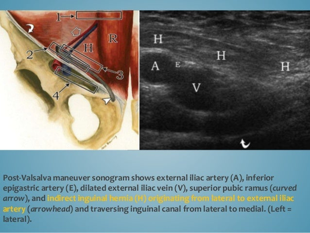 Indirect inguinal hernia. Long-axis view shows that neck of the hernia lies in the internal inguinal ring (IIR), which lie...