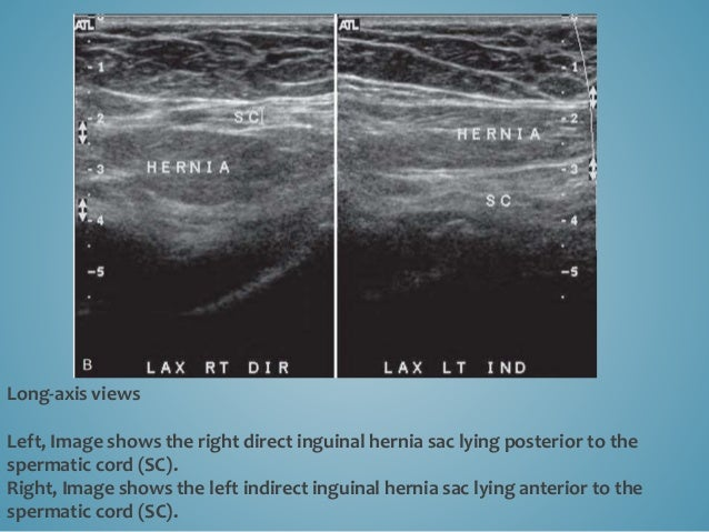 Indirect inguinal hernia. Short-axis view shows indirect inguinal hernia displacing and compressing the hyperechoic sperma...