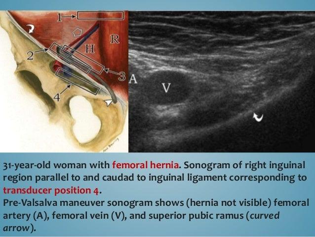 Post-Valsalva maneuver sonogram shows dilated femoral vein (V) lateral to femoral hernia (arrows). Superior pubic ramus (c...