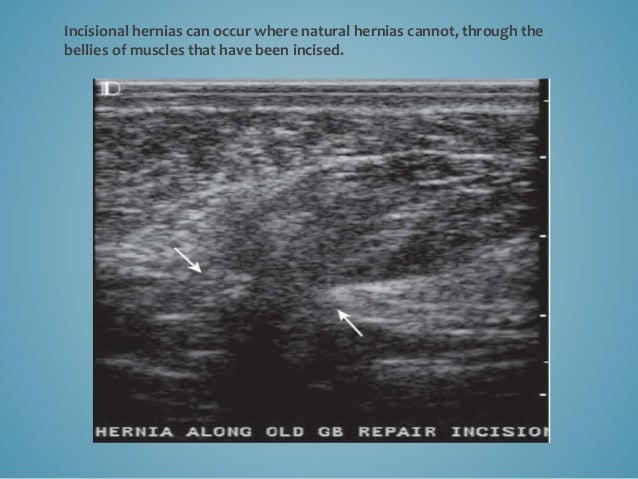 Narrow-necked, fat containing ventral incisional hernia that is incompletely reducible, with no compression on the right, ...