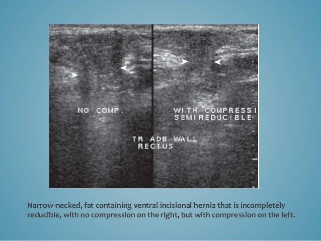 Hernia Complications Hernia complications include incarceration, obstruction, and strangulation. Incarcerated hernias are ...
