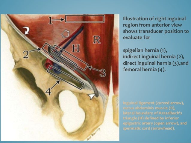 Illustration of right inguinal region from anterior view shows transducer position to evaluate for spigelian hernia (1), i...