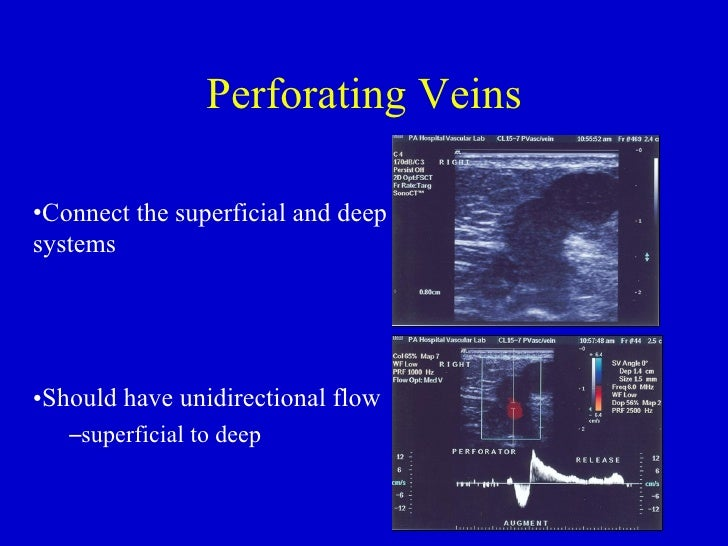 Femoral artery and vein anatomy