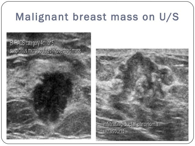 Ultrasound Breast Mass