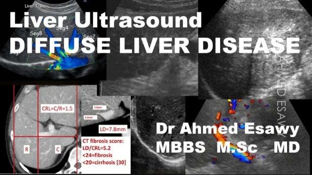 Ultrasound diffuse liver disease all things fibrosis,cirrhosis,us scoring,ce lrad,fibroscan,hepatitis,psc,aih,pbc