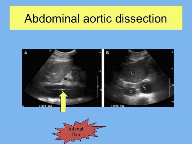 Ultrasound in abdominal emergencies