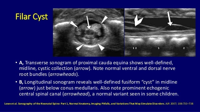 Ultrasound of spinal cord in neonates Dr. Muhammad Bin ... Sacral Canal Cyst
