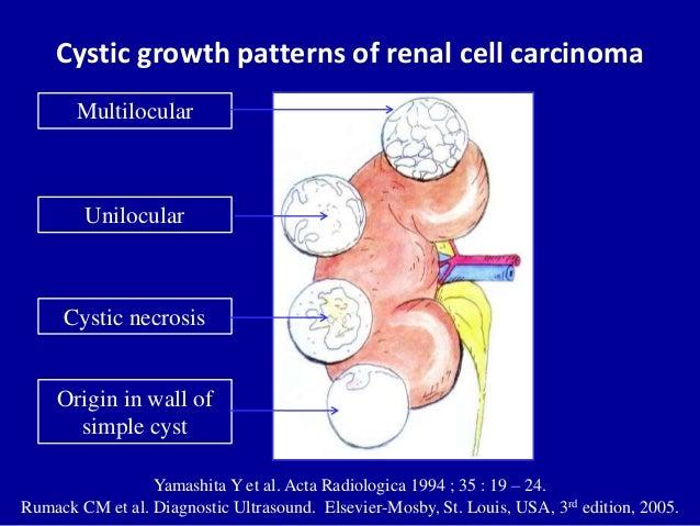 Cystic growth patterns of renal cell carcinoma Yamashita Y et al. Acta Radiologica 1994 ; 35 : 19 – 24. Rumack CM et al. D...