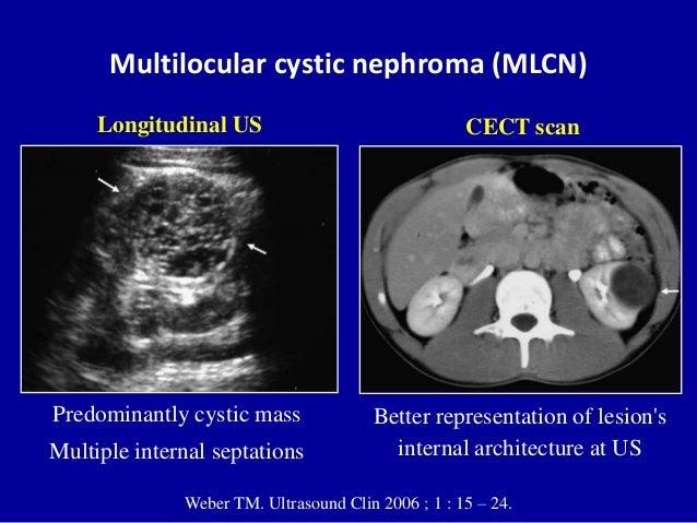 Multilocular cystic nephroma (MLCN) Weber TM. Ultrasound Clin 2006 ; 1 : 15 – 24. Predominantly cystic mass Multiple inter...