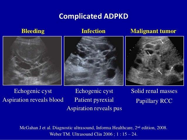 Complicated ADPKD McGahan J et al. Diagnostic ultrasound, Informa Healthcare, 2nd edition, 2008. Weber TM. Ultrasound Clin...