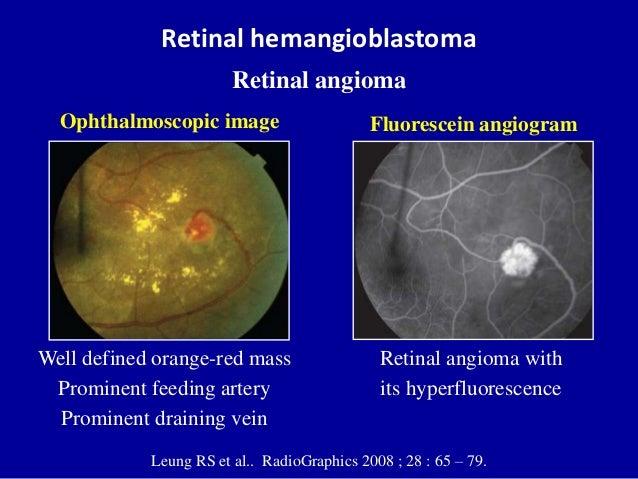 Retinal hemangioblastoma Retinal angioma Leung RS et al.. RadioGraphics 2008 ; 28 : 65 – 79. Well defined orange-red mass ...