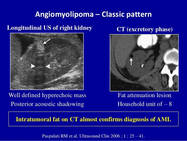Angiomyolipoma – Classic pattern Paspulati RM et al. Ultrasound Clin 2006 ; 1 : 25 – 41. CT (excretory phase) Fat attenuat...