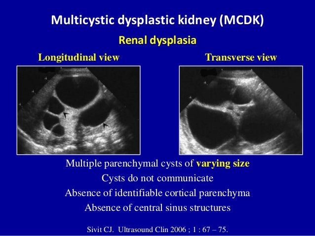 Ultrasound of the urinary tract - Renal cysts