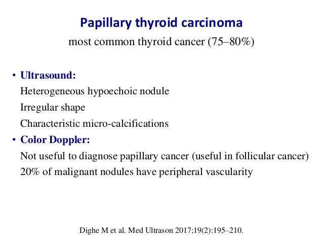 Ultrasound Of Thyroid Nodules