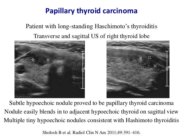Ultrasound Of Thyroid Nodules