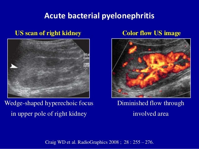 Ultrasound Of The Urinary Tract Renal Infections