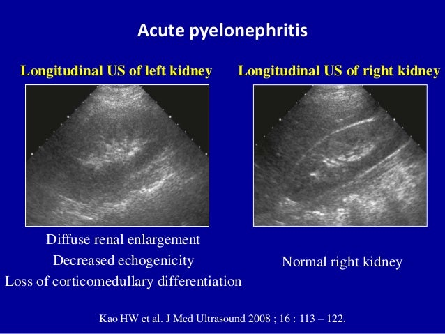 Ultrasound Of Urinary Tract Renal Infections