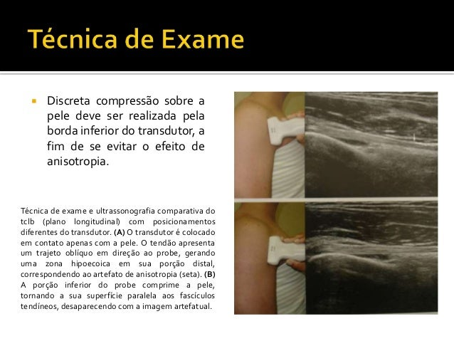 intra-articular corticosteroid injections