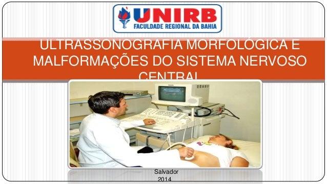 ULTRASSONOGRAFIA MORFOLÓGICA E  MALFORMAÇÕES DO SISTEMA NERVOSO  CENTRAL  Salvador  2014