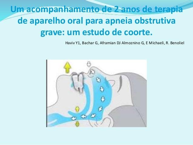 Um acompanhamento de 2 anos de terapia de aparelho oral para apneia obstrutiva grave: um estudo de coorte. Haviv Y1, Bacha...