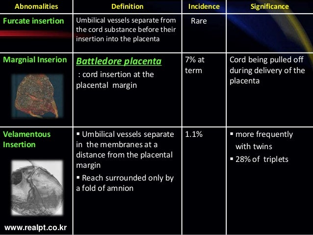 UMBILICAL CORD ABNORMALITIES & ITS OBSTETRIC OUTCOME BY DR ...   638 x 479 jpeg 80kB