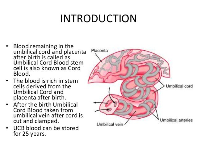 Umbilical Cord Stem Cell