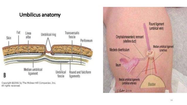 Umbilical Paraumbilical Hernia- Saral
