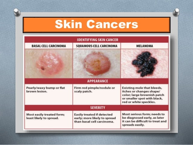 Baseball And Softball Official S Guide To Strike Out Skin Cancer