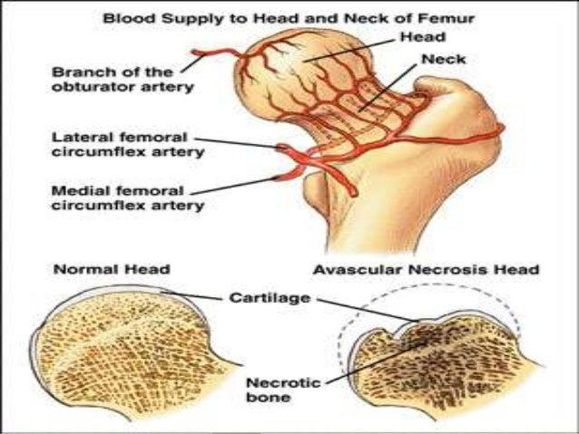 Medial Circumflex Femoral Artery Legg calve perthes dis...