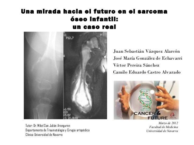Una mirada hacia el futuro en el sarcomaóseo infantil:un caso realJuan Sebastián Vázquez AlarcónJosé María González de Ech...