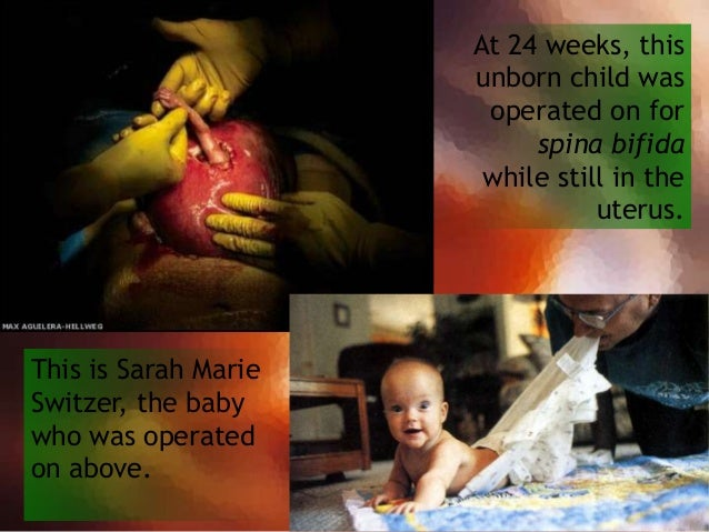 This is about the time that a premature baby can survive outside the womb, given proper medical treatment. This little boy...