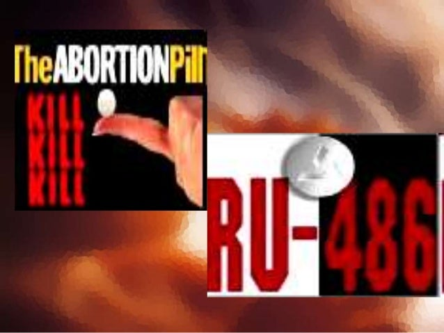 """Abortionists sometimes refer to Partial Birth Abortions or similar types of abortions as """"Dilation and Extraction"""" (D&X), ..."""