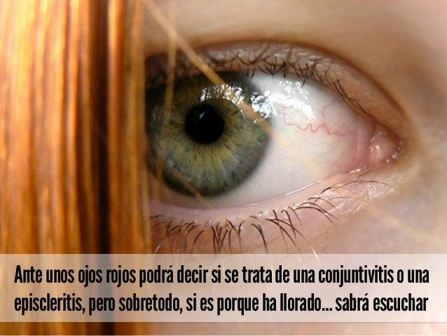 Anteunosojosrojospodrádecirsisetratadeunaconjuntivitisouna episcleritis,perosobretodo,siesporquehallorado…sabráescuchar