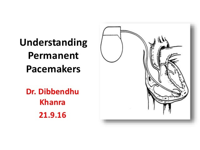 Understanding Permanent Pacemakers Dr. Dibbendhu Khanra 21.9.16