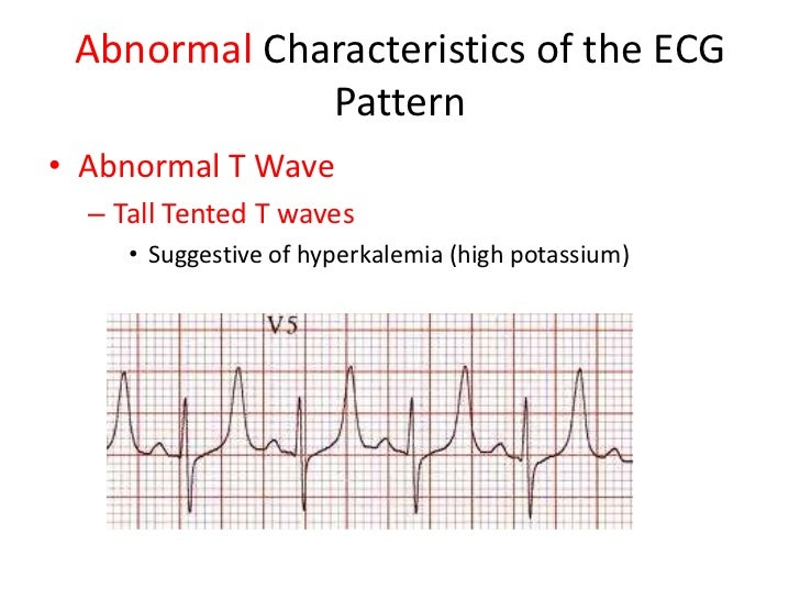... 30. Abnormal Characteristics of the ECG Patternu2022 Abnormal T Wave u2013 Tall Tented ...  sc 1 st  SlideShare & Understanding rhythm strips