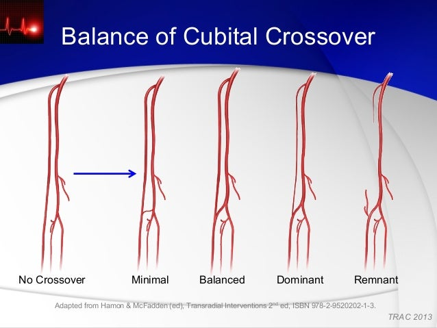 Gilchrist Ic Anatomy Of Radial And Brachial Arteries