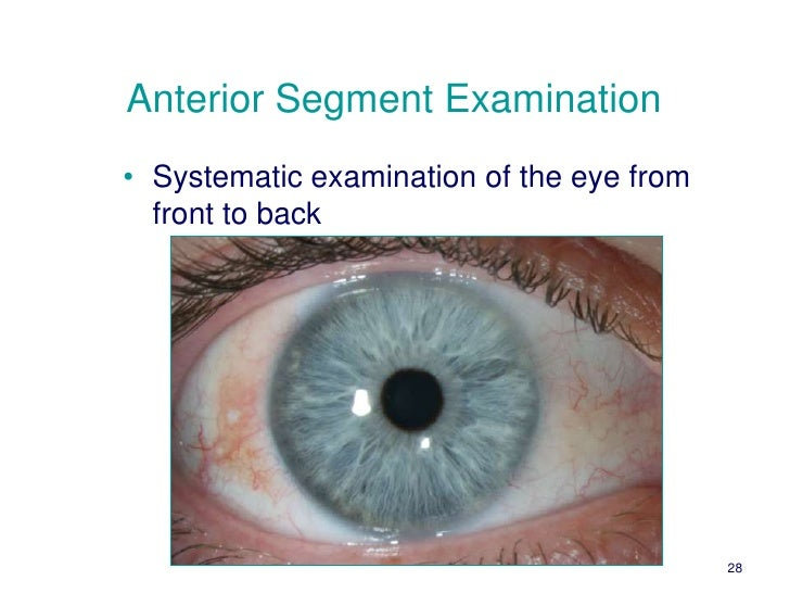 ... Magnification Changer 27; 28. Anterior Segment Examinationu2022 ...