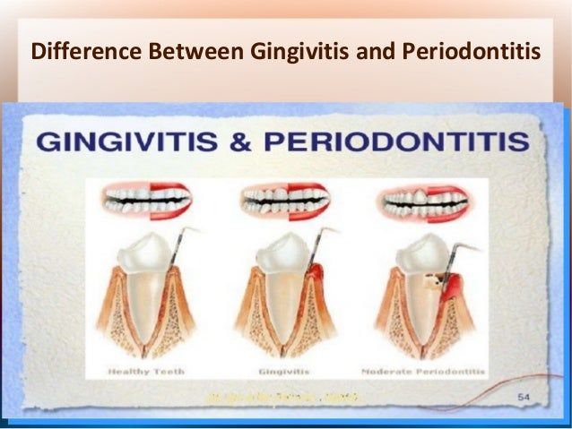 how to tell if you have gingivitis