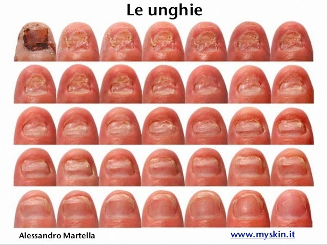 Le unghie Alessandro Martella www.myskin.it