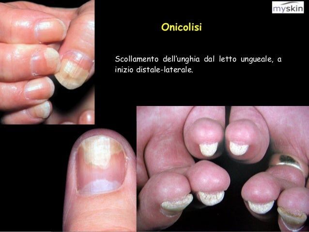Differenze di dermatite allergica da dermatite atopic
