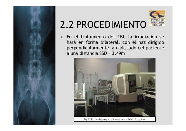 2.2 PROCEDIMIENTO• En el tratamiento del TBI, la irradiación se  hará en forma bilateral, con el haz dirigido  perpendicul...
