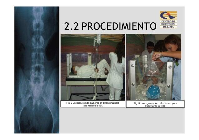 2.2 PROCEDIMIENTOFig. 2 Localización del paciente en el fantoma para   Fig. 3 Homogenización del volumen para             ...