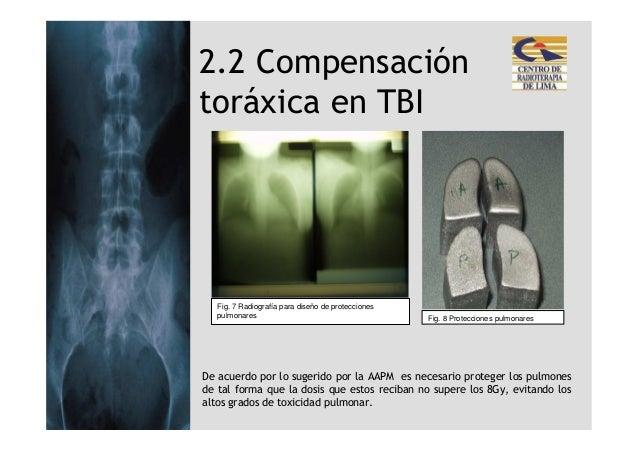 2.2 Compensacióntoráxica en TBI   Fig. 7 Radiografía para diseño de protecciones   pulmonares                             ...