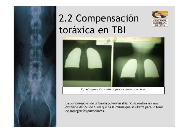 2.2 Compensacióntoráxica en TBI           Fig. 9 Compensación de la banda pulmonar con las protecciones. La compensación d...