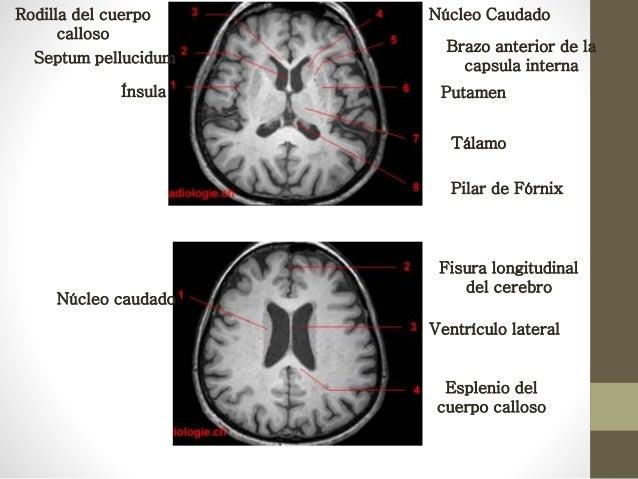 Protocolo cerebro en resonancia magnetica