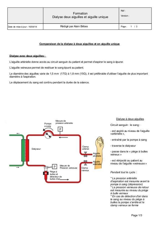 Comparaison de la dialyse à deux aiguilles et en aiguille unique Dialyse avec deux aiguilles: L'aiguille artérielle donne...
