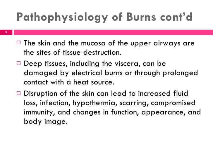 Unit 2 management of patients with burn Slide 3