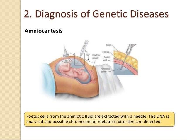 Unit 6 Human Genetics