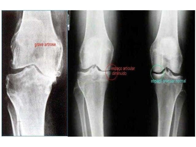 artrite e artrose