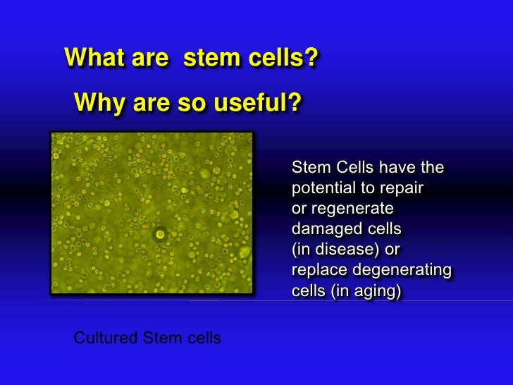 why are stem cells so controversial essay List of stem cell research papers topics it has also been a highly debatable and controversial topic so if you are writing your research papers on stem cell.